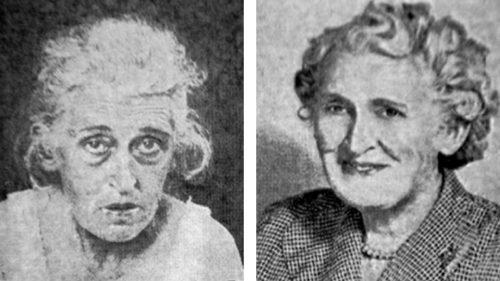 Některým pacientům lobotomie údajně pomohla. Vlevo je snímek ženy před zákrokem, vpravo stejná žena o nějaký čas později.
